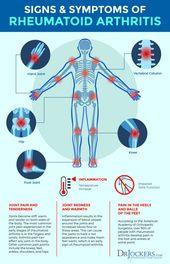 Rheumatoid Arthritis: Symptoms, Causes and Natural Support Strategies